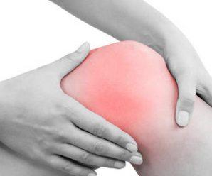 Une arthrose gênante : quand faut-il poser une prothèse de genou ?